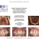 Congenitally-Missing-Lateral-Incisors-Orthodontist-McNutt-Braces-1