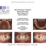 Congenitally-Missing-Lateral-Incisors-Orthodontist-McNutt-Braces-2