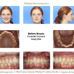 Crowded-Incisors-Damon-Braces-Orthodontist-Raleigh-Cary-clayton-NC-2RT-1