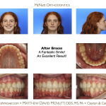 Crowded-Incisors-Damon-Braces-Orthodontist-Raleigh-Cary-clayton-NC-2RT-2
