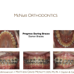 Crowded-Incisors-Damon-Braces-Orthodontist-Raleigh-Cary-clayton-NC-2RT-3