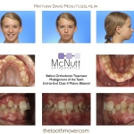 Crowded-Teeth-Braces-Orthodontist-McNutt-Before-1