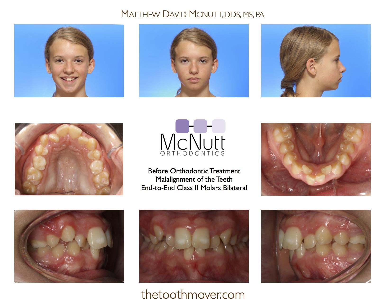 Crowding Non-Extraction Treatment Photos | Orthodontics