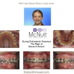 Crowded-Teeth-Braces-Orthodontist-McNutt-During-1