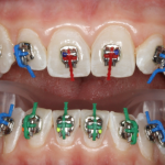 Damon Braces Customized
