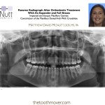 Impacted and Ectopic Maxillary Canines Constriction of the Maxillary Dental Arch With Crossbites Class III Dental and Skeletal Malocclusion
