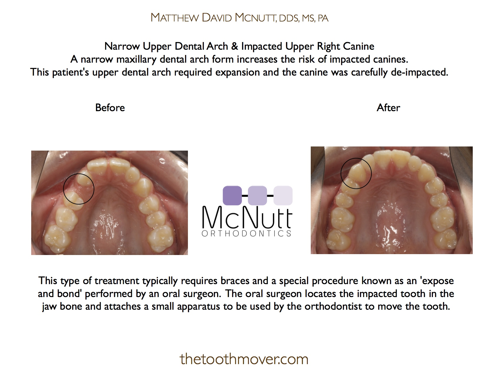 dental arch
