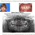 Impacted Lateral Incisor Before Phase I