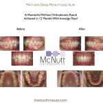 A Wonderful McNutt Orthodontics Invisalign Teen Before and After Achieved in only 12 Months!