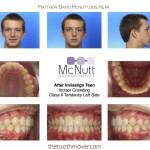 Invisalign Teen After
