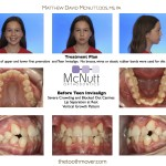 Invisalign Teen Severe Crowding With Extractions