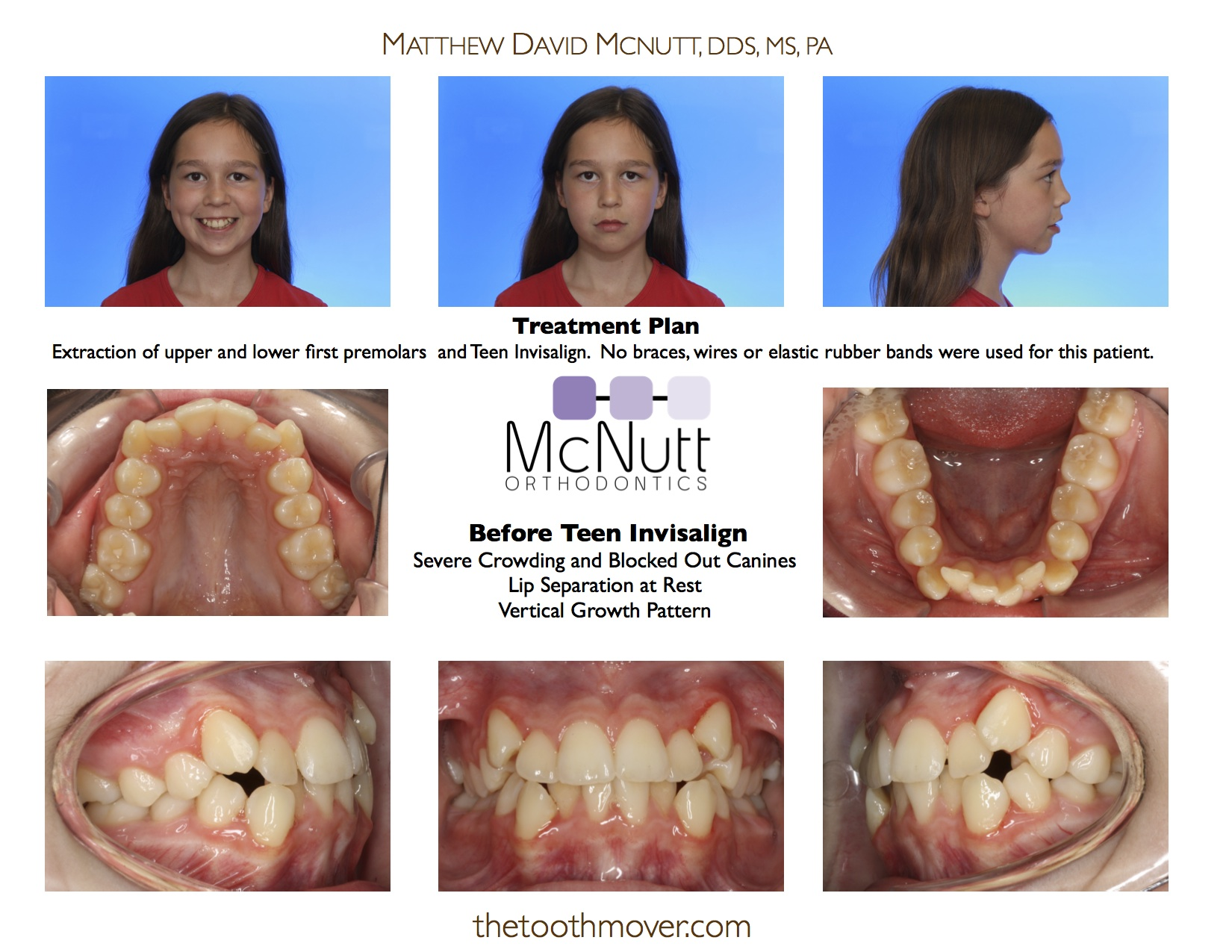 Invisalign Treatment Photos | Orthodontics | Cary NC ... Invisalign Before And After Severe Crowding