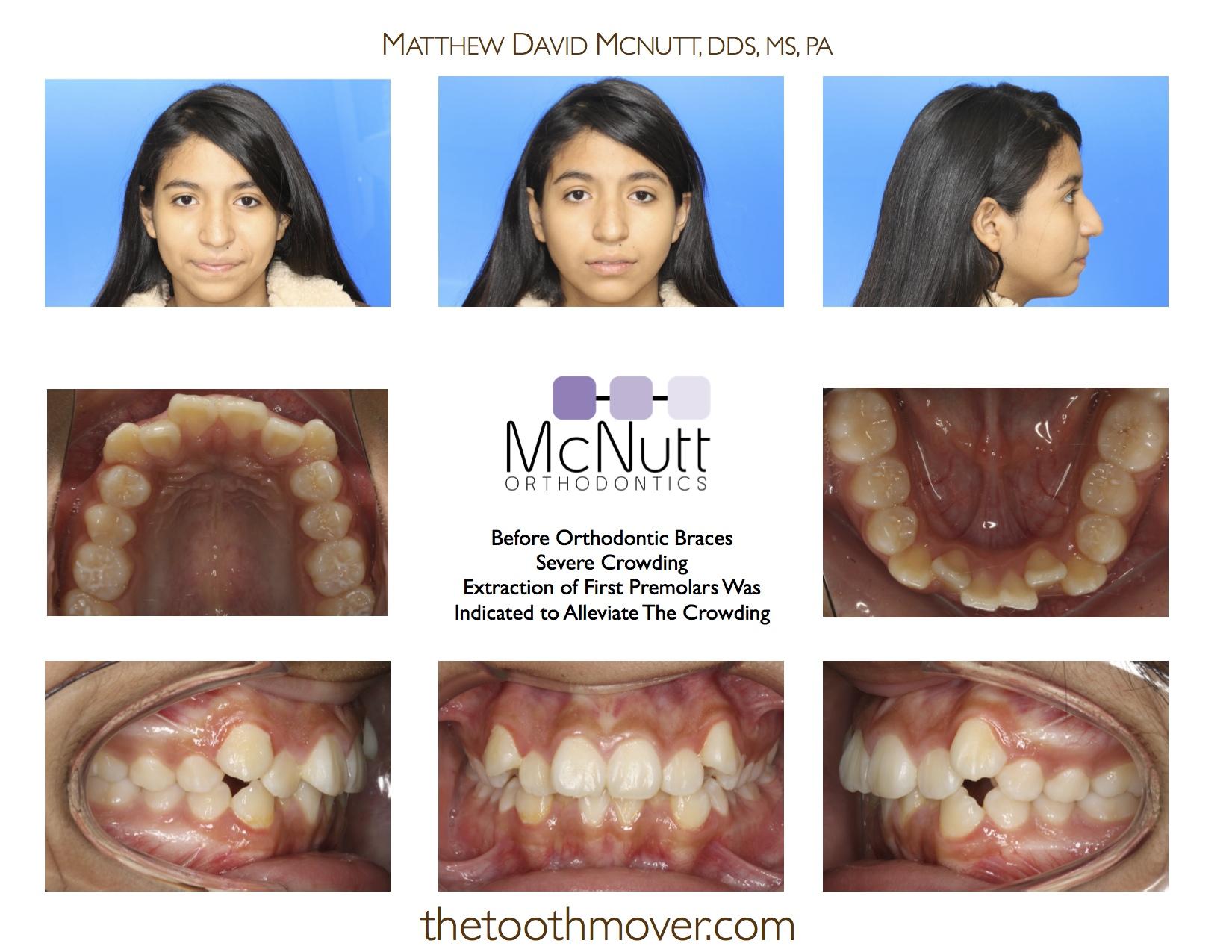 Crowding Extraction Treatment Photos | Orthodontics
