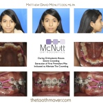 During Braces Severe Crowding
