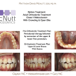 Orthodontist-NC-Cary-Raleigh-Clayton-McNutt-Class-II-1
