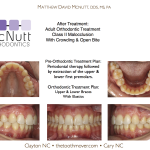 Orthodontist-NC-Cary-Raleigh-Clayton-McNutt-Class-II-2