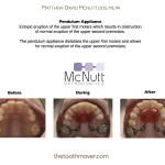 Ectopic eruption of the upper first molars which results in obstruction  of normal eruption of the upper second premolars.  The pendulum appliance distalizes the upper first molars and allows  for normal eruption of the upper second premolars.