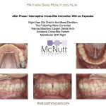 After Phase I Expander Posterior Crossbite With Functional Shift