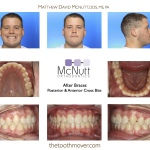 Posterior-Anterior-Cross-Bite-Orthodontist-Braces-3-McNutt-After