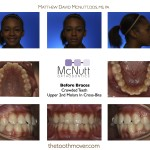 Second-Molar-Cross-Bite-Braces-McNutt-Orthodontist-Before-And-After-1