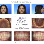 After Braces & TAD Asymmetric Class II OMI
