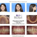 Before Braces & TAD Asymmetric Class II OMI