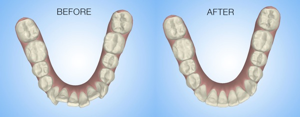 Treatment-Simulator-Occlusal2